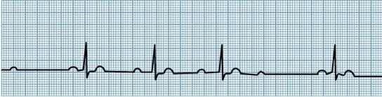 Her atrial fibrillation strip